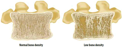bone-density-low-vs-high